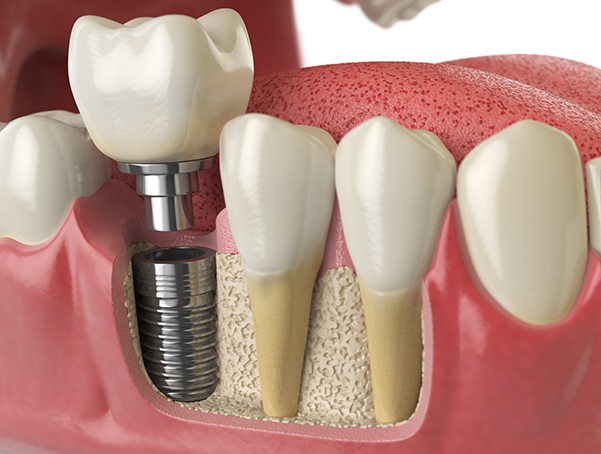 Implant Dentistry Whitby Ontario