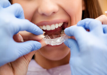 types-of-braces-whitby