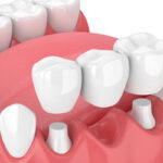 dental-bridges-whitby