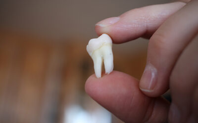 why-do-we-have-wisdom-teeth-whitby