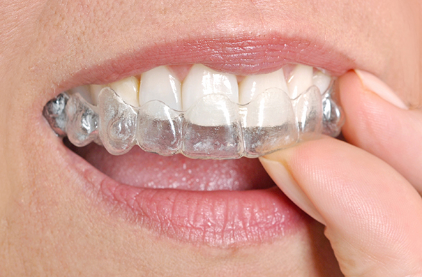 how-much-does-invisalign-cost-whitby